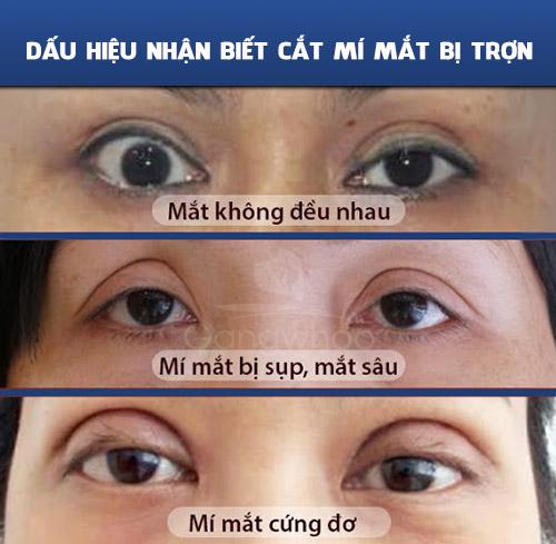 Dấu hiệu nhận biết cắt mí mắt bị trợn