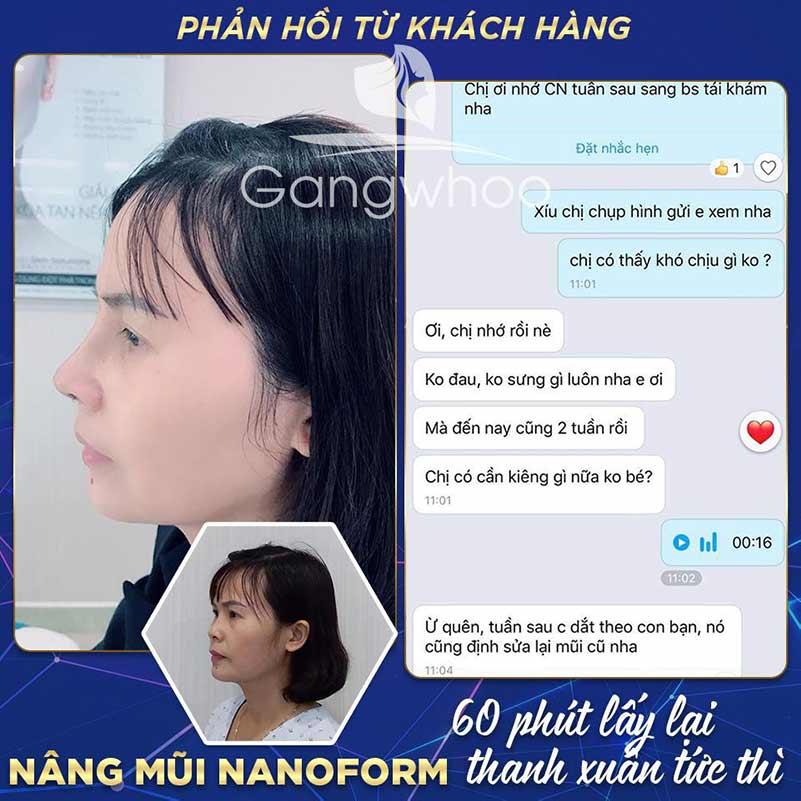 Feedback của khách hàng nâng mũi Nanoform tại TMV Gangwhoo