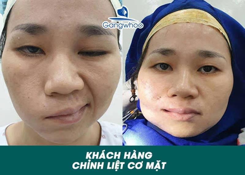 Khách hàng sau khi chỉnh liệt mặt (liệt dây thần kinh số 7) tại TMV Gangwhoo