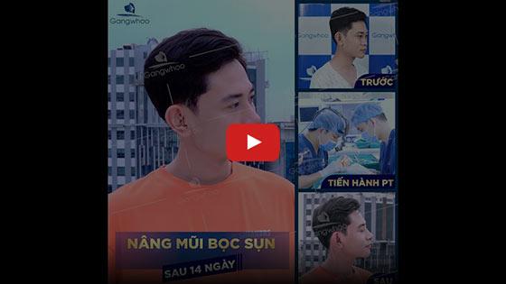 Nâng Mũi Đẹp Hot Trend TPHCM 2020 - Thẩm mỹ viện Gangwhoo 5