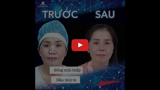 Nâng Mũi Đẹp Hot Trend TPHCM 2020 - Thẩm mỹ viện Gangwhoo 3