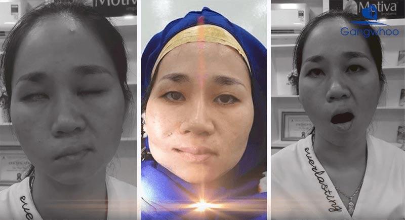 Điều Trị Liệt Mặt (Chữa Liệt Dây Thần Kinh Số 7) Uy Tín Tại TPHCM