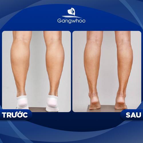 Khách hàng thực hiện lipo bắp chân