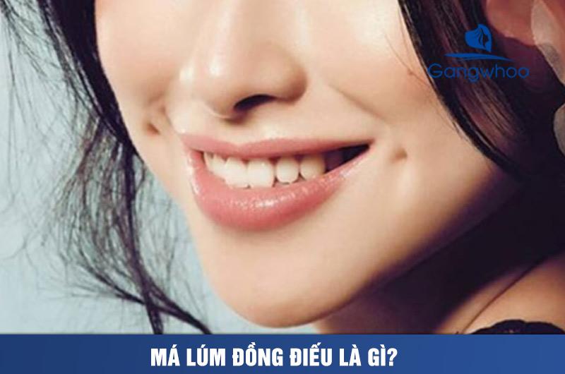 Má Lúm Đồng Trinh, Má Lúm Đồng Điếu Là Gì? Lúm Đồng Tiền Ở Khóe Miệng
