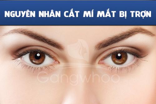 Nguyên nhân cắt mí mắt bị trợn