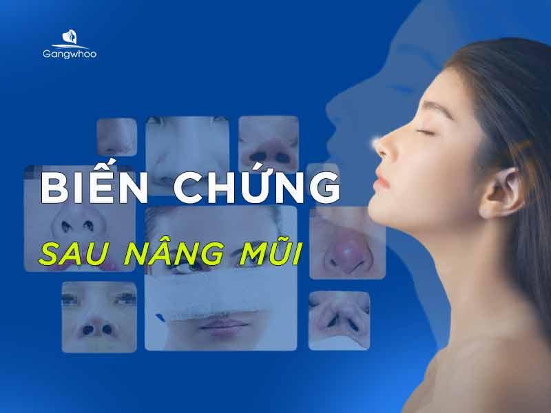 biến chứng sau nâng mũi