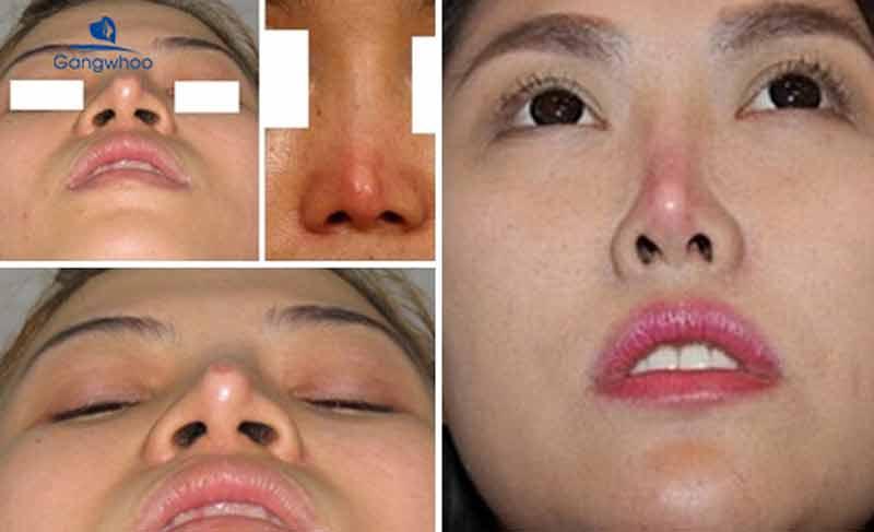 bóng đỏ đầu mũi là một trong các biến chứng sau nâng mũi
