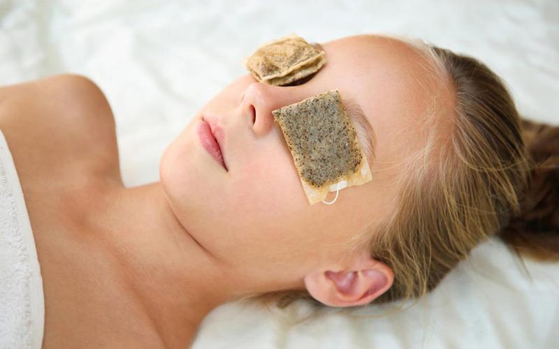 Cách chữa lẹo mắt nhanh nhất với cách chườm túi trà