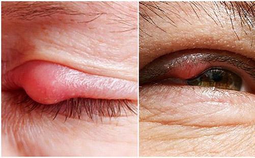 """Lẹo Mắt Là Gì? """"Bật Mí"""" Cách Chữa Lẹo Mắt Nhanh Nhất"""