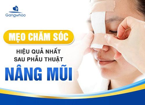 Chăm sóc sau nâng mũi cấu trúc