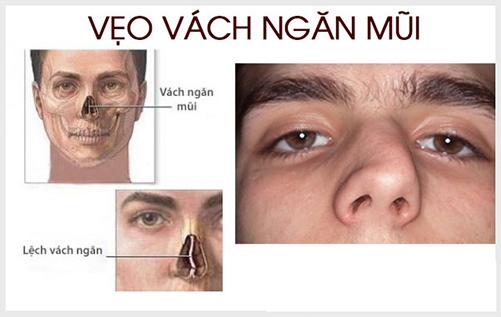 Các dạng lệch vách ngăn mũi