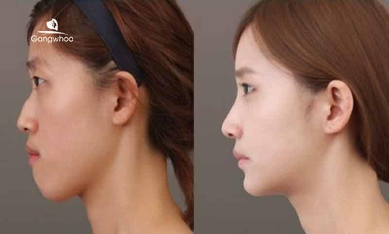 nâng mũi là cách khắc mũi mũi gãy hiệu quả