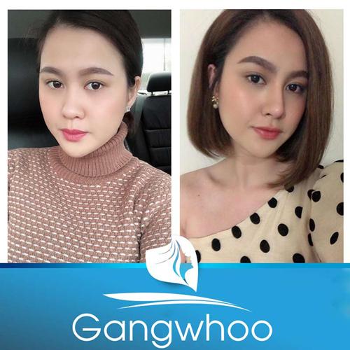 Hình ảnh thay đổi sau khi nâng mũi tại tmv Gangwhoo