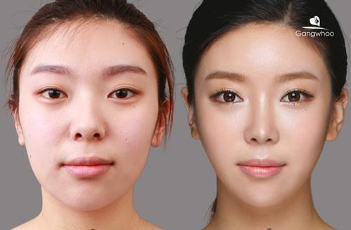 phương pháp sửa mũi hếch triệt để, bền vững