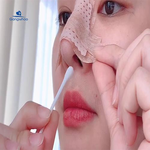 vì sao phải đeo nẹp mũi sau khi nâng mũi