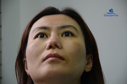 vẹo vách ngăn mũi có nguy hiểm không