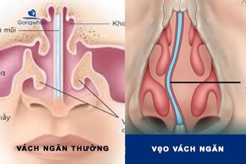 thế nào là vẹo vách ngăn mũi