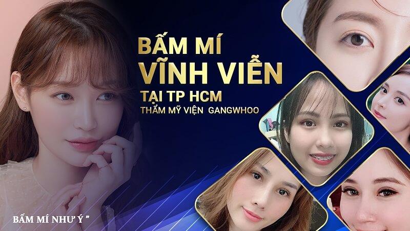 Bác Sĩ Sửa Mí Mắt Giỏi Cho Việt Kiều Ở Việt Nam 1