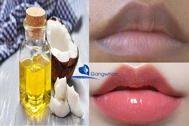 Cách trị môi thâm bẩm sinh bằng dầu dừa