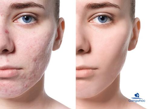 điều trị sẹo rỗ bằng laser FDA Hoa Kỳ công nhận an toàn