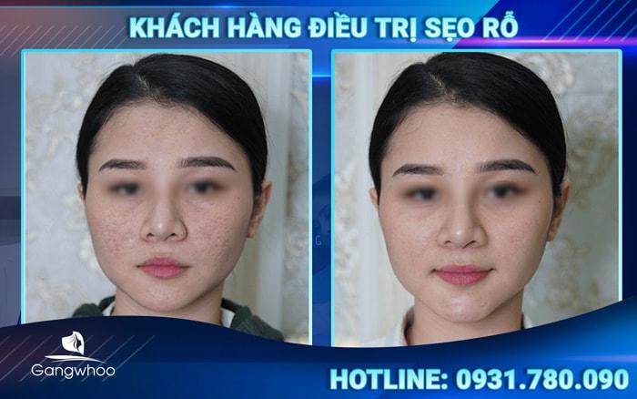 điều trị sẹo rỗ bằng laser không làm tái phát sẹo