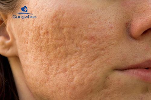 vùng da bị sẹo rỗ lâu năm