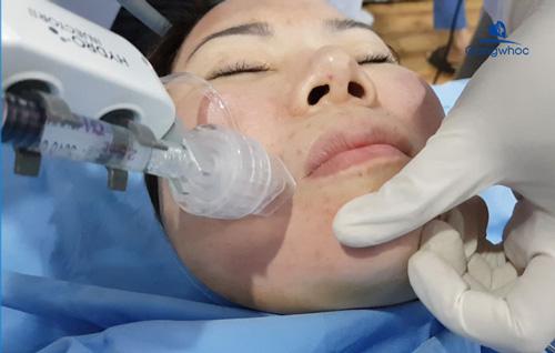 Điều trị sẹo rỗ bằng công nghệ siêu vi điểm Laser Fractional CO2