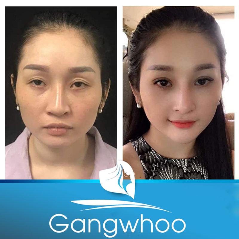 Bác Sĩ Sửa Mí Mắt Giỏi Cho Việt Kiều Ở Việt Nam 4