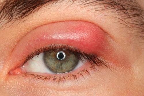 [Hỏi – Đáp] Cắt Mí Hỏng Có Sửa Được Không? 5