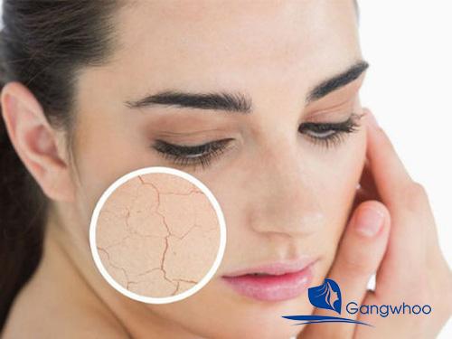 Da khô sần sùi và cách giải quyết hiệu quả (100% đã test)