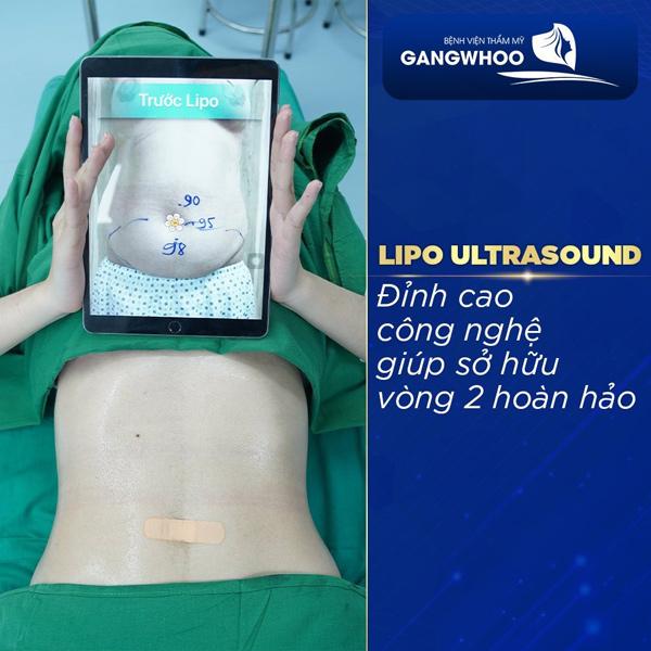 Dáng đẹp eo thon chỉ sau 30 phút với công nghệ giảm mỡ không phẫu thuật Lipo Ultrasound
