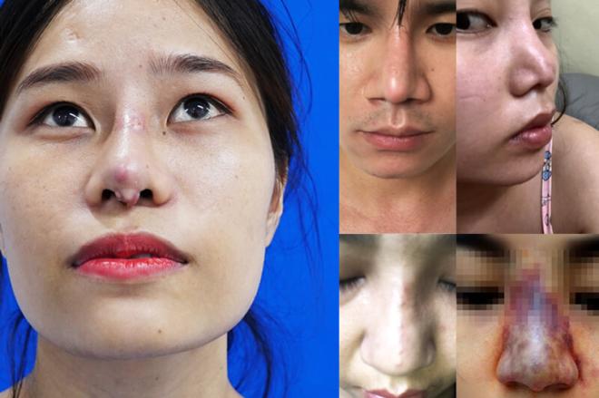 Nâng mũi có thể gây ra biến chứng khi thực hiện tại địa chỉ kém uy tín