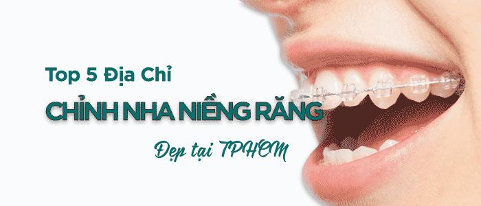 Top 5 Địa Chỉ Chỉnh Nha (Niềng Răng) Đẹp Tại TPHCM