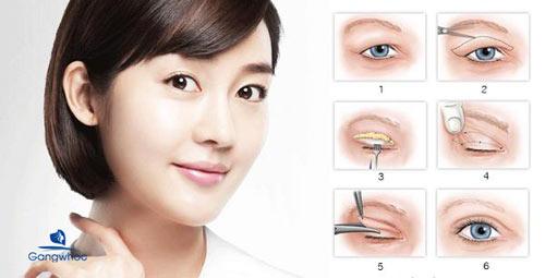 Bước 6: Tiến hành cắt mí mắt