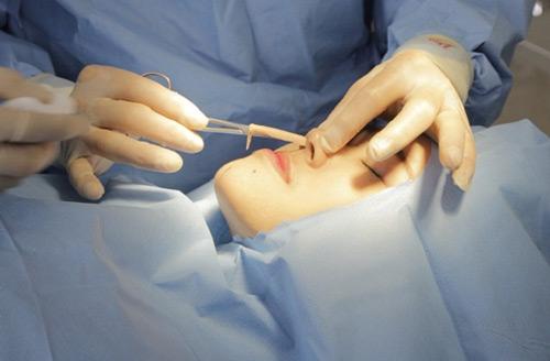 Tháo sụn nâng mũi không có hại cho sức khỏe