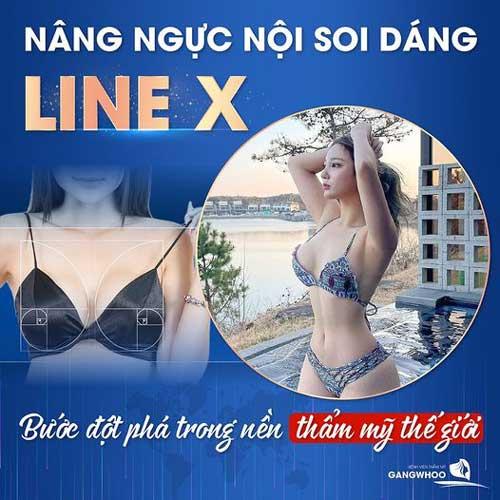 Nâng Ngực (Line X) – Sự Đột Phá Nền Thẩm Mỹ Thế Giới