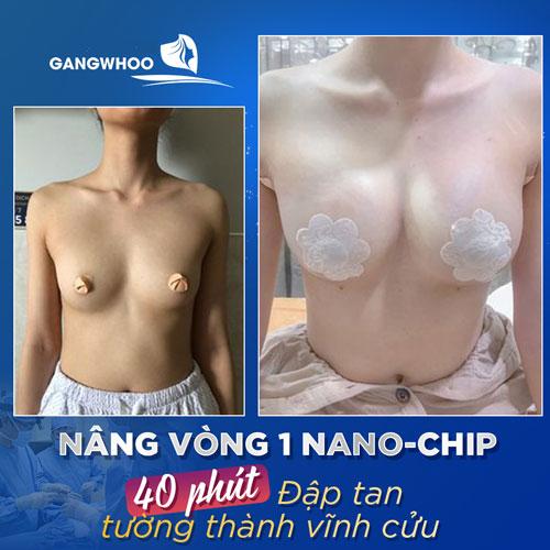 Nâng Ngực Nội Soi Túi (Nano Chip) 4