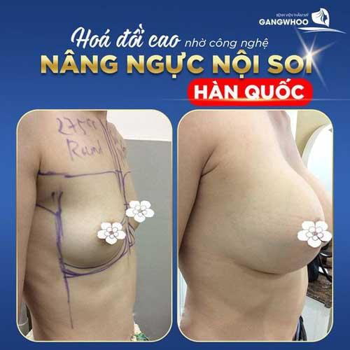 Nâng Ngực (Line X) - Sự Đột Phá Nền Thẩm Mỹ Thế Giới 4