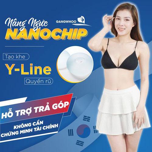 Nâng Ngực Nội Soi Túi (Nano Chip)