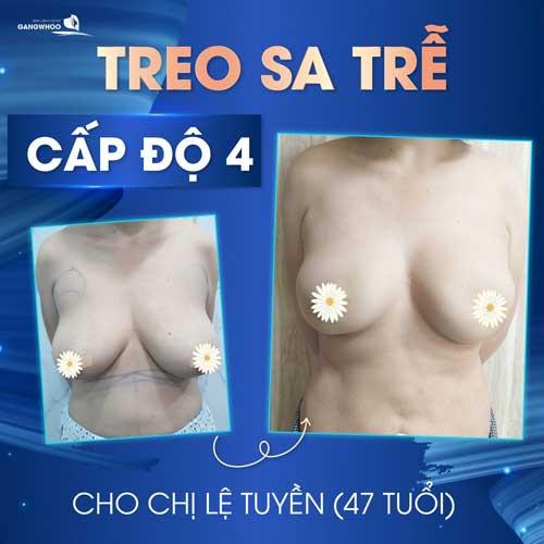 Treo Ngực Sa Trễ - Lấy Lại Thuở Xuân Thì Cho Bầu Ngực 5