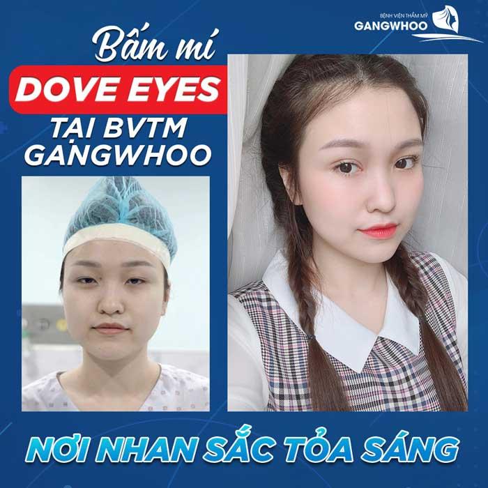 Bấm Mí (Dove Eyes), Thổi Hồn Cho Đôi Mắt Long Lanh (Hot Trend 2021) 1