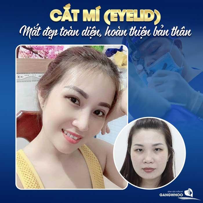 Cắt Mí (Eyelid) Tự Tin Thu Hút Mọi Ánh Nhìn - Hoàn Thiện Cửa Sổ Tâm Hồn 1