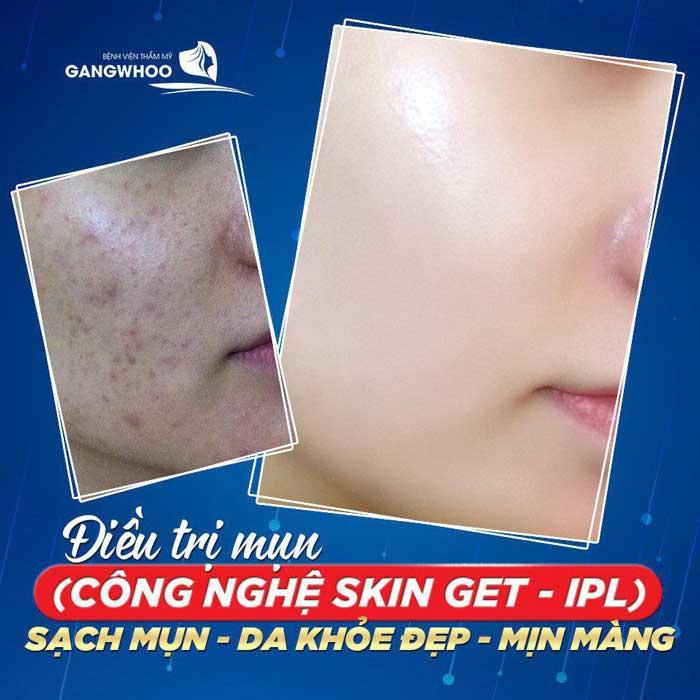 Điều Trị Mụn Bằng Công Nghệ Độc Quyền (Skin Get) Mới Nhất 2021 2